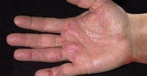 Артрит на пръстите на ръцете