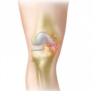 Желатин за ревматоиден артрит