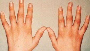 artroza u prstima)
