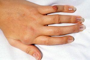 artroza u prstima