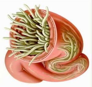 paraziti znaki metastatic cancer ncbi